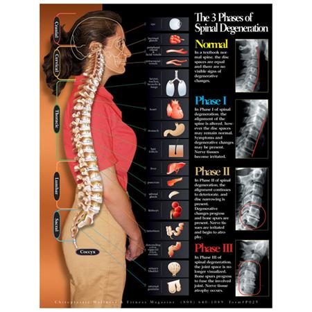 3 Phases Of Spinal Degeneration Chart 22X28 Lamntd