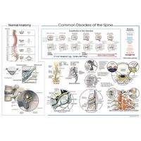 """Common Disorders Of The Spine Poster 20"""" X 30"""""""