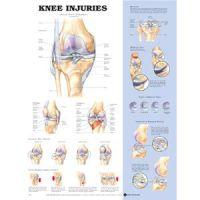 """Knee Injury Chart 20"""" X 26"""" Styrene Plastic"""
