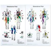 """Sclerotome Pain Charts 22"""" X 36"""" Set Of 2"""