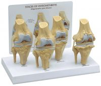 Four Stage Knee Model